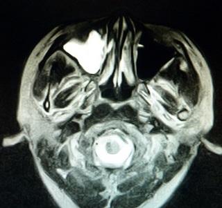 20120518副鼻腔炎CT B.jpg