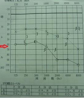 20120706聴神経腫瘍B4.jpg