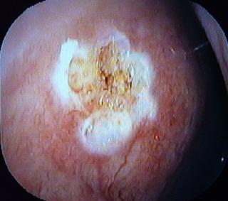 鼻血処置201212.jpg