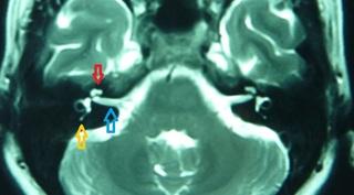 MRI 内耳B .jpg